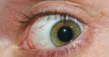 لمستخدم الكمبيوتر انتبه.. زيادة الوقت أمامه تجفف سائل العين وتضعف البصر