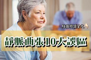 靜脈曲張的10大誤區,別讓傳統觀念誤導!-台灣養生網