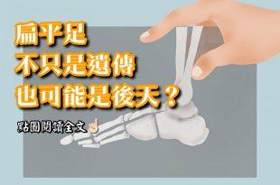 不只是遺傳也可能是後天生理導致,那麼得了扁平足,還能跑步嗎?-台灣養生網