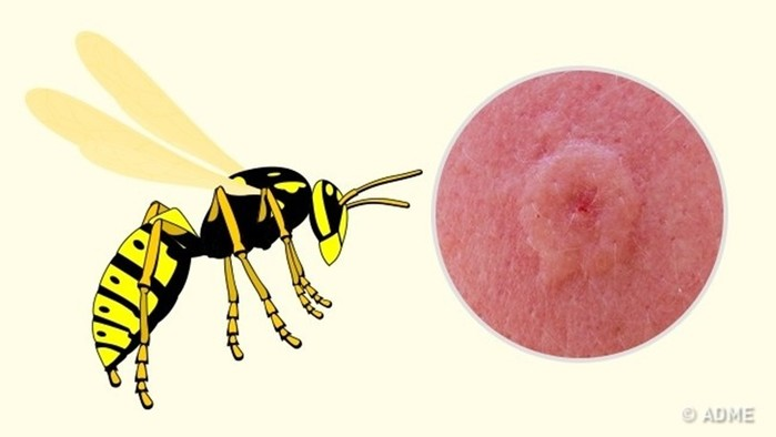 Учимся распознавать, какое насекомое вас укусило