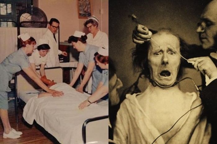 Самые страшные вещи, которые делали врачи со своими пациентами в прошлом
