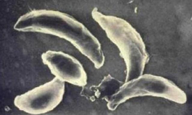 Самые ужасные паразиты, опасные для человека