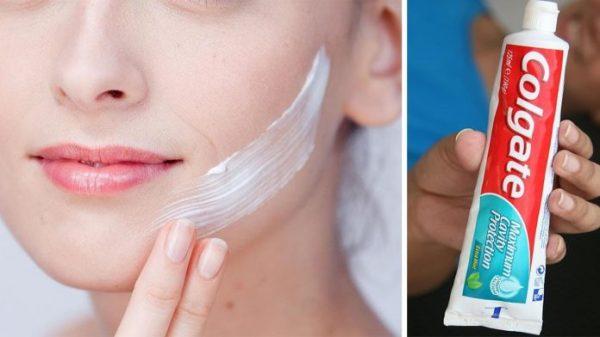 Нанесите зубную пасту на кожу и увидите волшебство! Средство от прыщей, угрей и дефектов