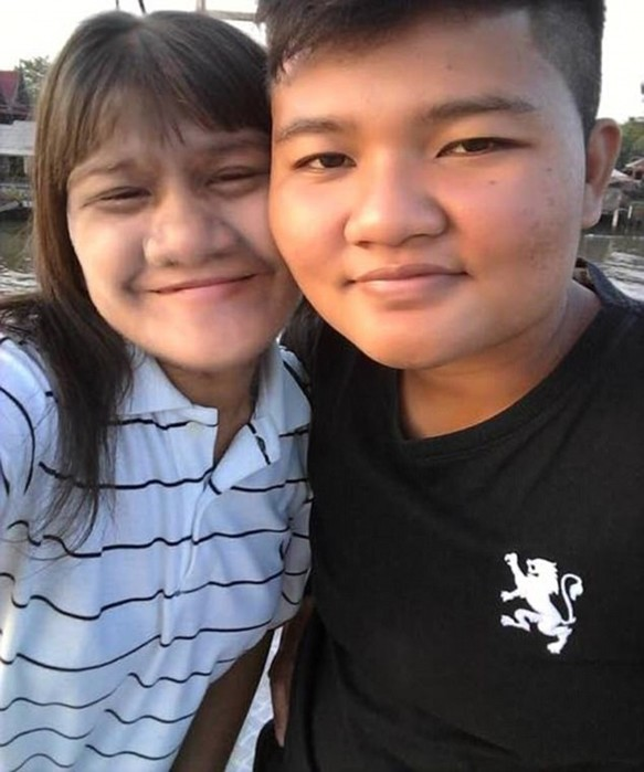 Девушка с синдромом Амбраса вышла замуж и начала бриться