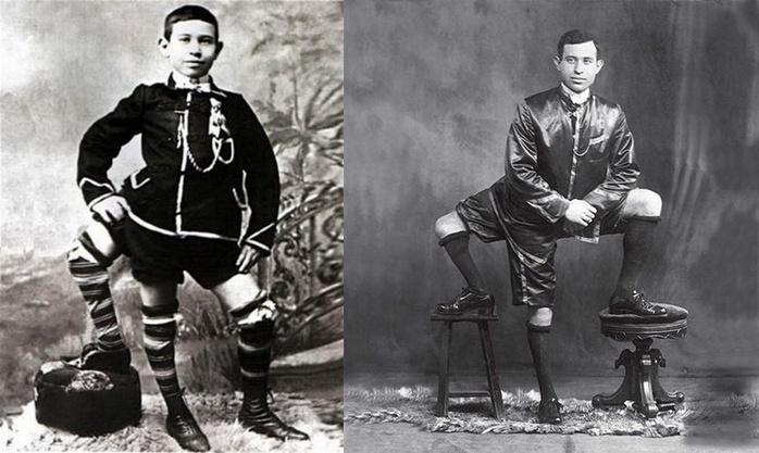 Франческо Лентини: человек с тремя ногами