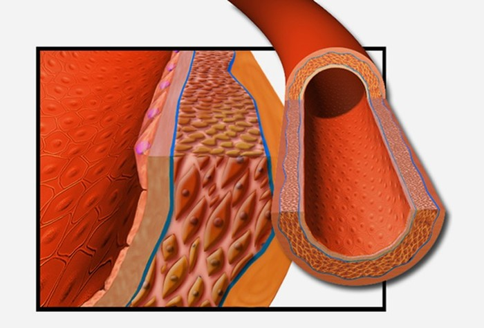 Гипертензия: названо неожиданное преимущество высокого кровяного давления