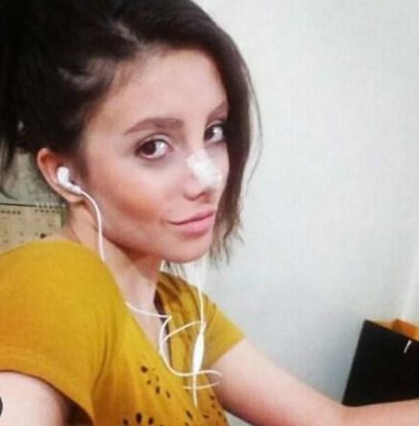 «Девушка зомби» с 50 пластическими операциями призналась, что всех обманула