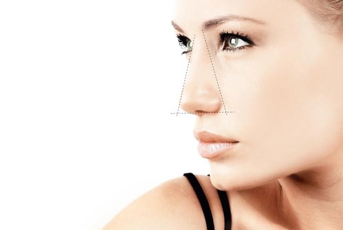 Проблемы с пластикой носа (ринопластикой)