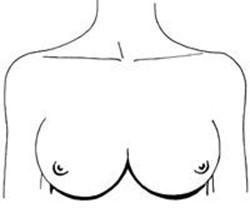 Сексуальный темперамент зависит от формы груди