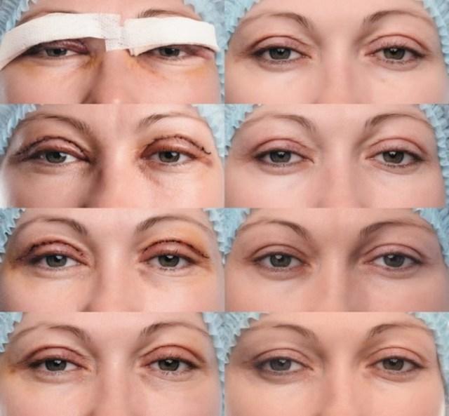 Косметологические процедуры с побочными эффектами