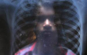 In this Feb. 1, 2014 photo, a tuberculosis patient shows his X-ray.