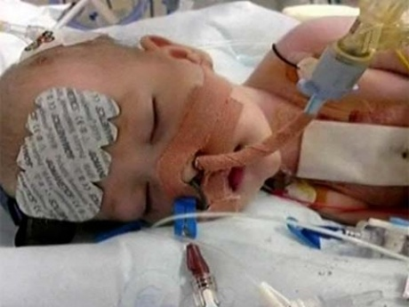 В  Великобритании младенца заморозили, чтобы вылечить его сердце