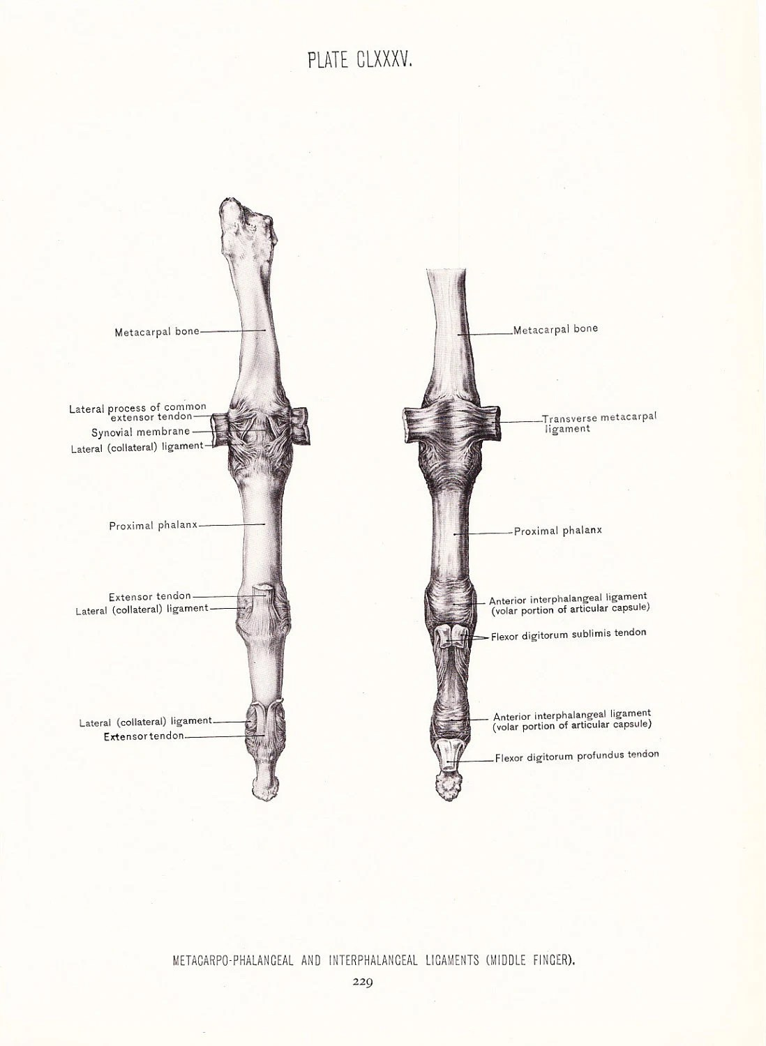 1926 Human Anatomy Print Ligaments of Middle Finger