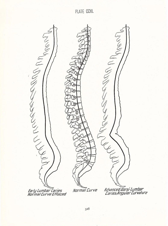 1926 Human Anatomy Print Spinal Curve Vintage Antique