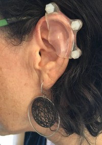 Custom Plastic Ear Compression for Keloids Pressure Earring