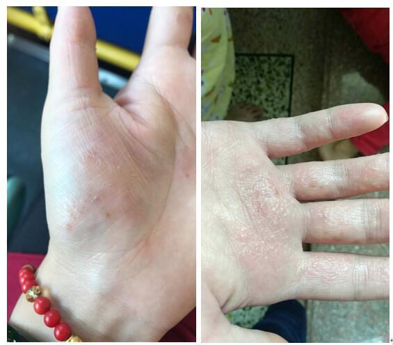 手部濕疹發展的四個階段。手部濕疹怎麼辦? - 愛經驗