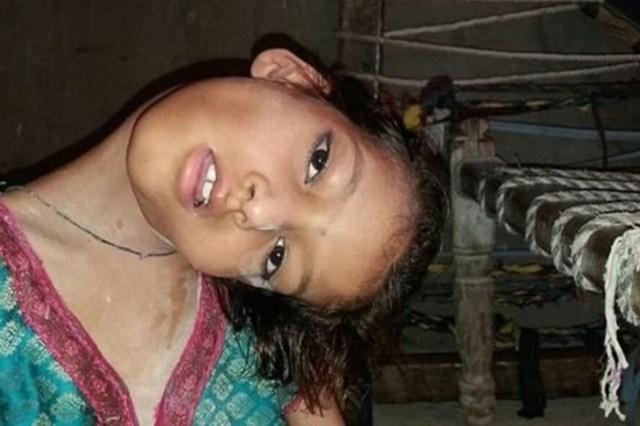 Девочка 9 лет живёт со сломанной шеей. Жизнь под углом 180 градусов