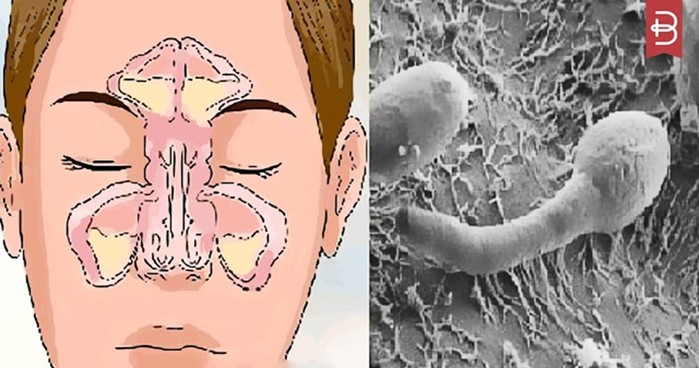 Проблема заложенности вашего носа находится в вашем кишечнике