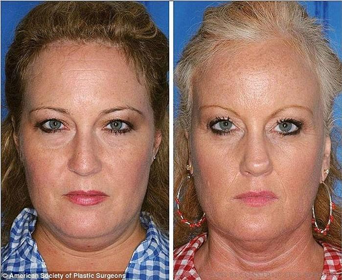 Вред курения в наглядном сравнении на примере близнецов