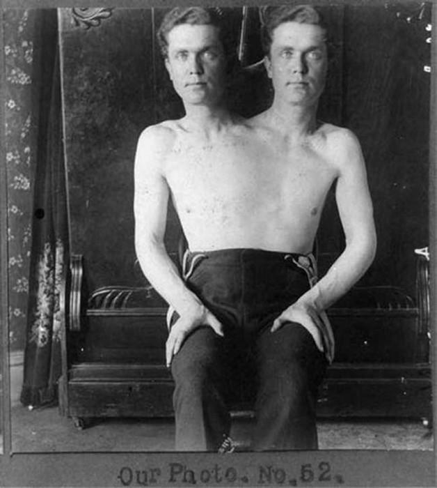Циркачи из прошлого: уродливые и удивительные (фото)
