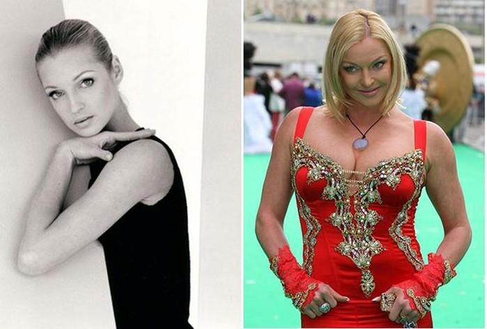 Знаменитые женщины, разрушающие свою красоту собственными руками