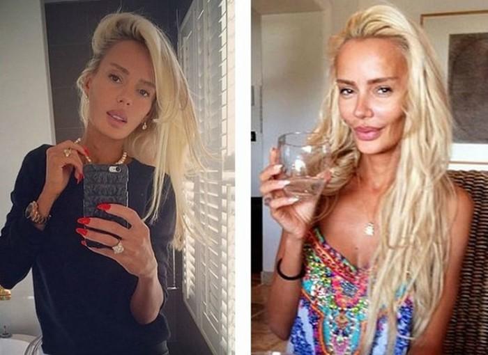 10 российских красавиц до и после пластики