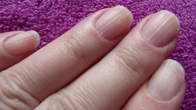 ränder på naglarna