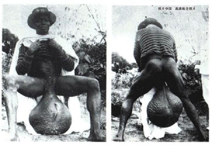 Племя бубал с гигантскими гениталиями: разоблачение фейка «африканской аномалии»