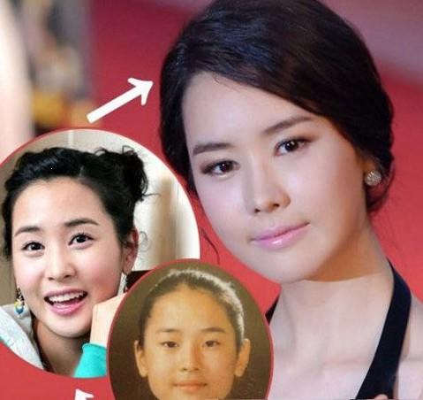 二次整容失敗的韓國女明星_團團大叔的相冊_房天下相冊_搜房網