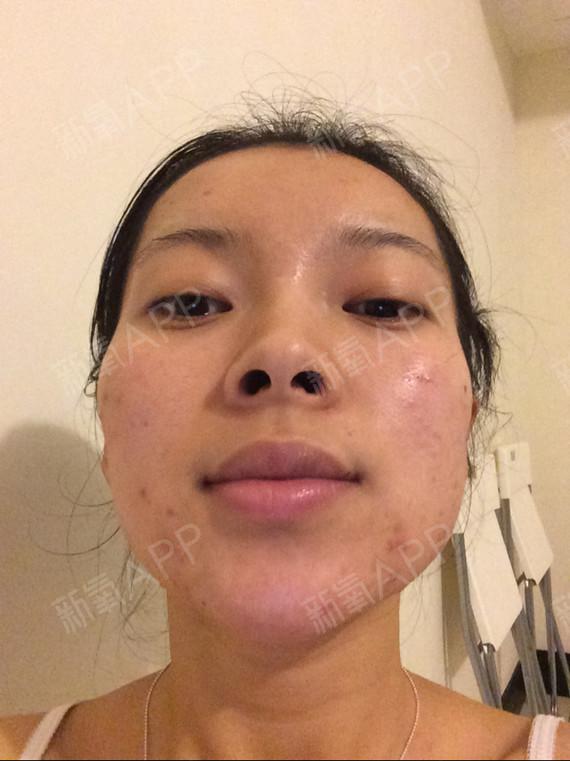 為什么鼻孔是長扁狀-扁鼻孔代表什么/圓鼻孔和扁鼻孔/鼻孔有點大怎么辦/鼻孔大好不好