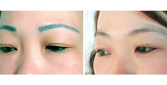 如何洗眉毛_洗眉好不好_洗眉需要幾次_洗眉圖片_新氧整形