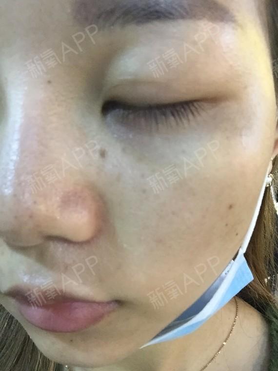 激光去眼袋好不好_效果圖_青呱呱呱呱激光去眼袋術后第4天_新氧美容整形