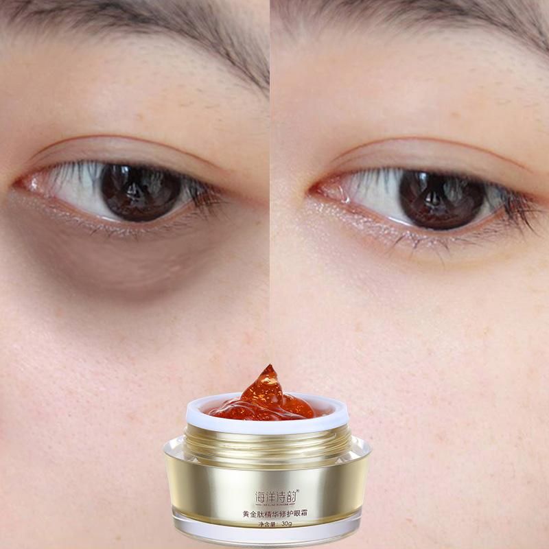 怎樣去眼袋和黑眼圈-