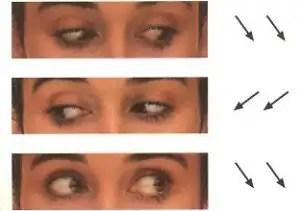 oculares2300x211 - Metodo Natural para Curar Miopia, Hipermetropia, Astigmatismo, Presbicia y Estrabismo
