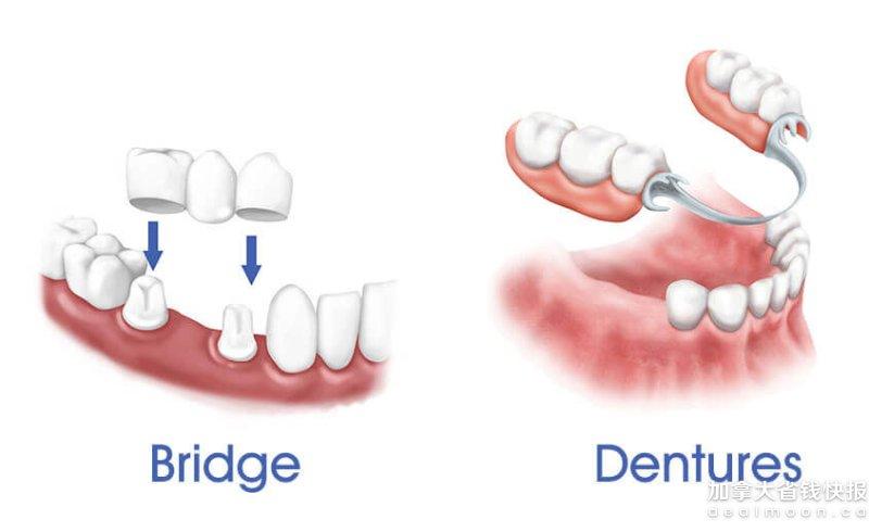 看牙醫實用英文 | 洗牙,補牙,植牙,口腔潰瘍英文詞匯大全,常用英語對話-加拿大省錢快報 Dealmoon.com 攻略