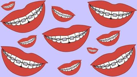 關于整牙,你需要知道的都在這里-北美省錢快報 Dealmoon.com 攻略