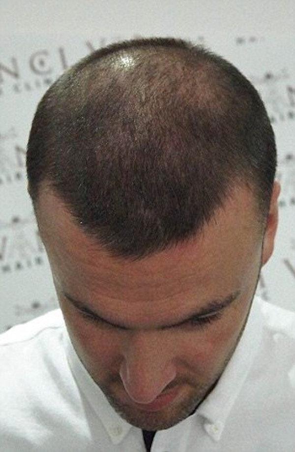 bald men tattoos