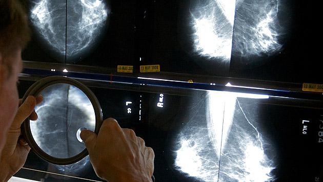 Krebs-Todesfälle bei Frauen werden stark zunehmen (Bild: AP)