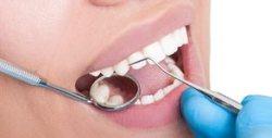 Ултразвуково почистване на зъбен камък, машинно полиране, преглед и консултация