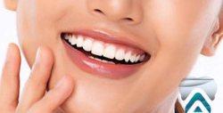 Почистване на зъбен камък с ултразвук и полиране с Air Flow, плюс преглед и план за лечение