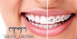 Преглед и консултация от специалист ортодонт, плюс план за лечение