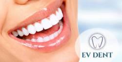 Почистване на зъбен камък с ултразвук и полиране на зъбите, плюс преглед и план на лечение