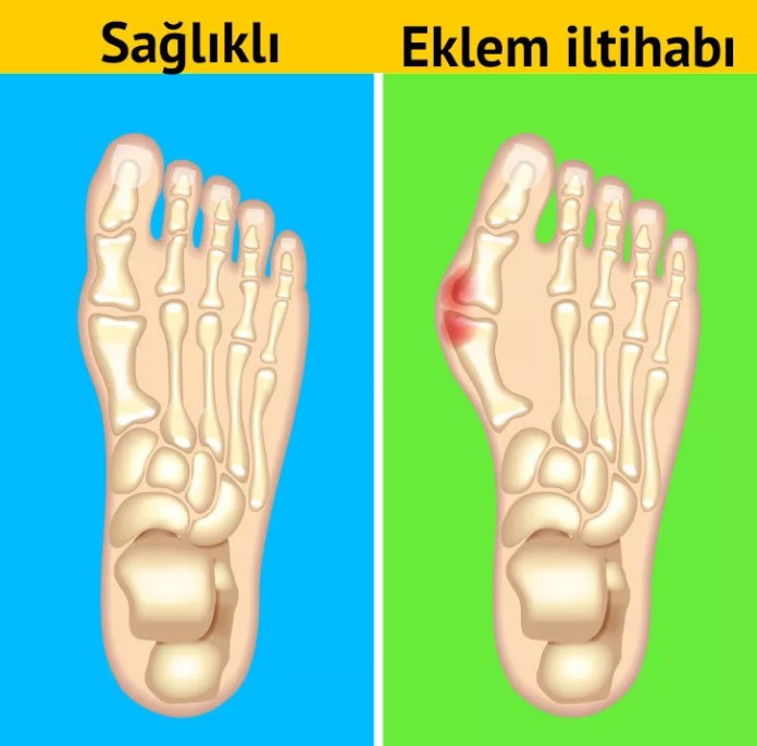 Ağrılı ayak eklemleri