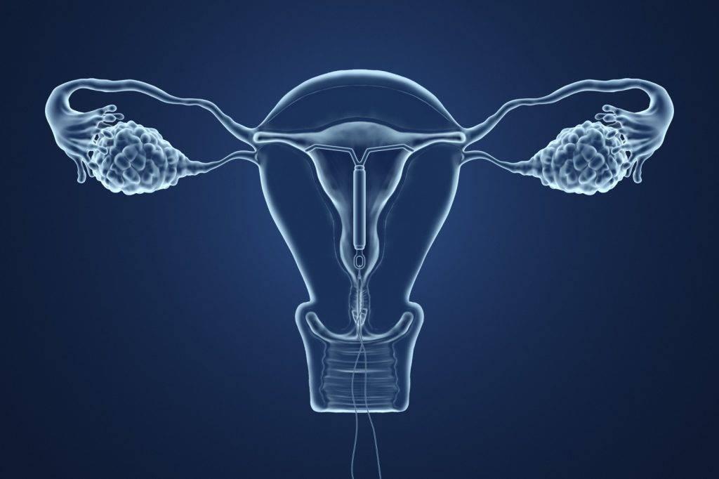 媽媽2年前戴子宮避孕器 BB手執子宮環出生   懷孕前後   Sundaykiss ...