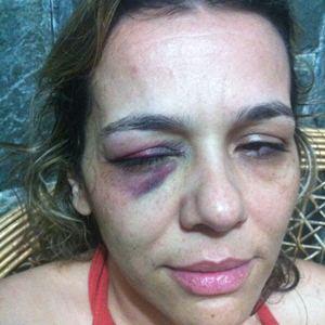 Violência teria ocorrido na noite do dia 17 deste mês, na QE 34 do Guará (Arquivo Pessoal)