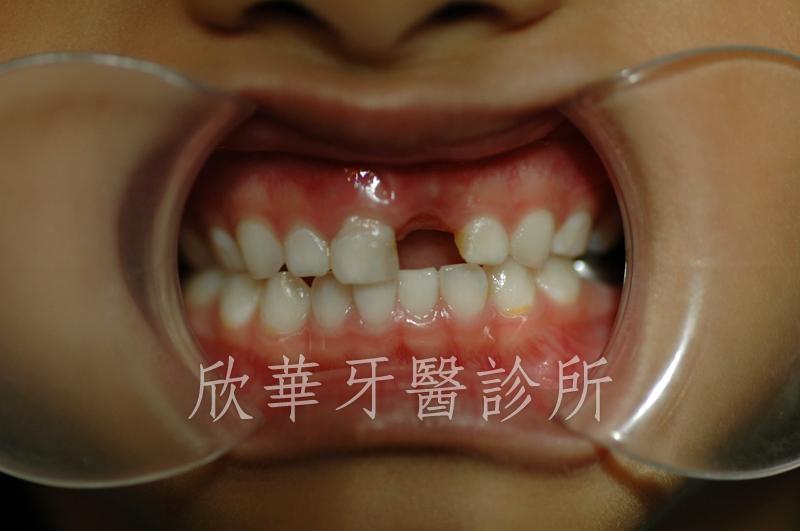 乳牙缺齒影響美觀可用活動義齒解決|臺北三重牙醫.欣華牙醫診所