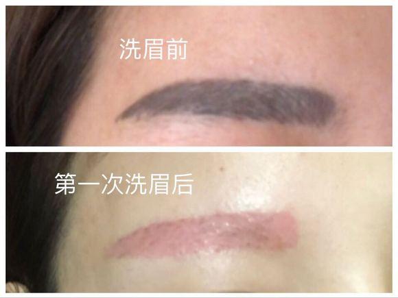 【圖片】記錄洗眉后恢復過程_洗眉吧_百度貼吧
