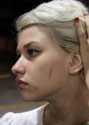9.jan.2013 - Manifestante do Femen Brazil mostra ferimento em seu rosto; ela alega que a marca foi causada pelo sapato de um segurança do shopping que pisou em seu rosto