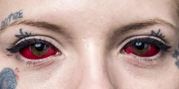 Segundo o deputado, a tatuagem nos olhos pode gerar problemas sérios oftalmológicos, tais como: inflamações, catarata, glaucoma e até cegueira