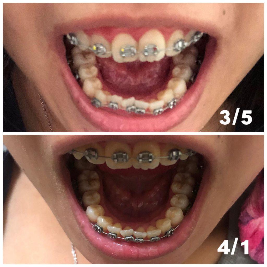 #更 即將滿月的下排變化! - 牙齒矯正板 | Dcard